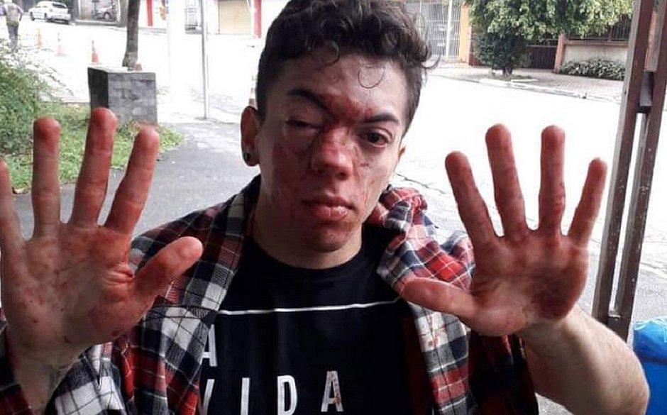 Ator é agredido e acusa motorista de ônibus de homofobia