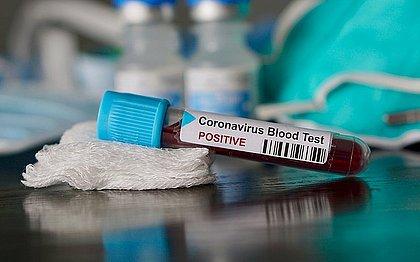 Bahia tem 3.138 novos casos de coronavírus; infectados passam 110 mil