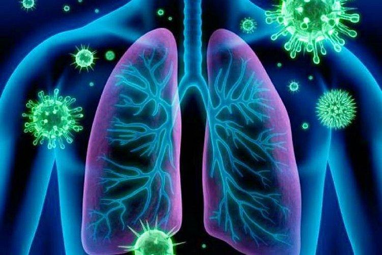 Recorde de problemas respiratórios sugere subnotificação de coronavírus na Bahia
