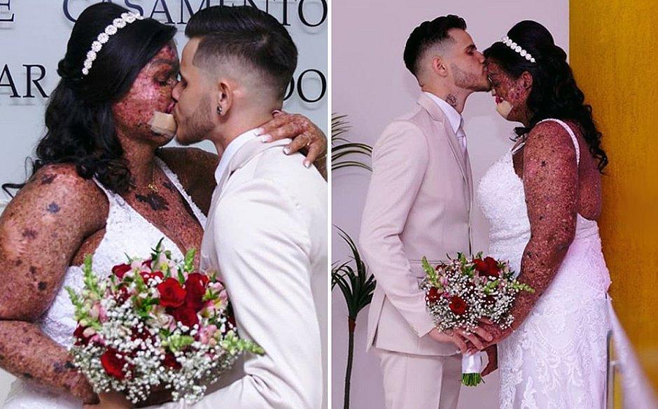 Após 120 cirurgias, jovem com doença de pele rara realiza sonho de se casar