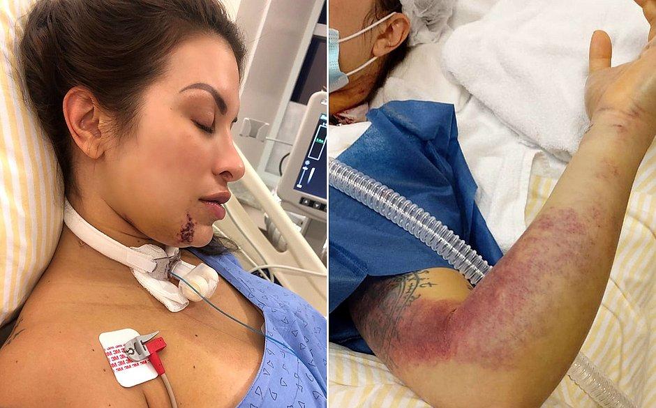 Médica picada por jararaca mostra marcas deixadas pela cobra; veja fotos