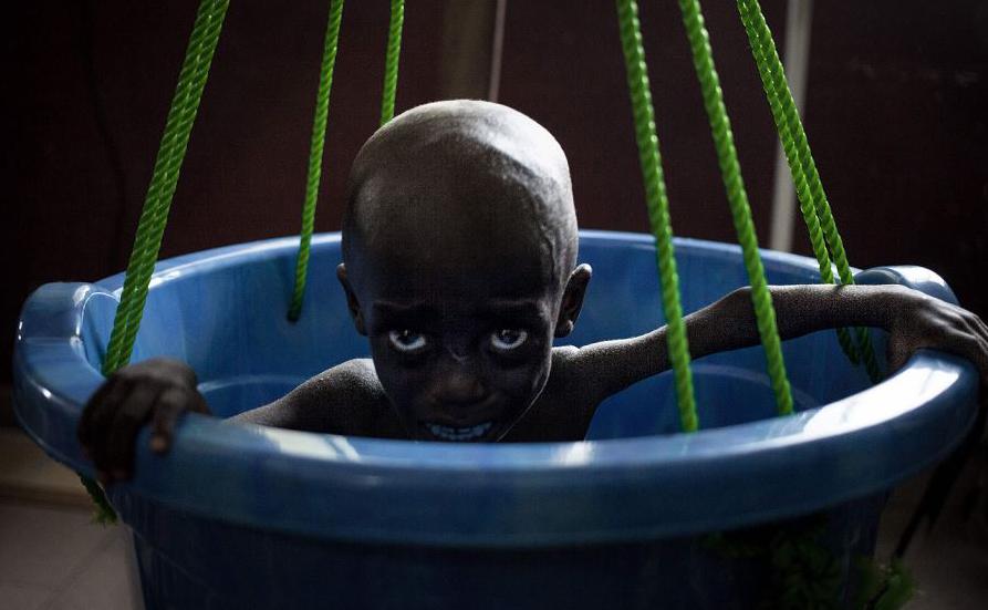 Complexo pediátrico de Bangui na República Centro-Africana, onde existe a maior taxa de mortalidade infantil do mundo.